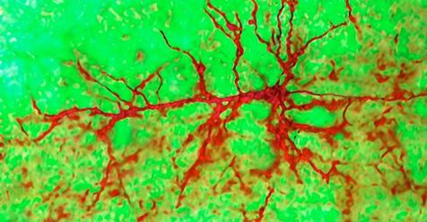 Growing new neurons in the human adult brain